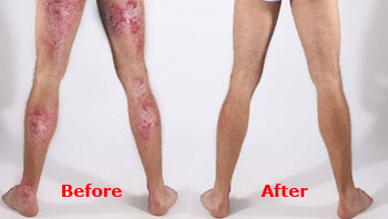 Henry Psoriasis Before & After