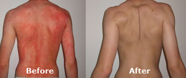 Josephine's Son Psoriasis Before & After